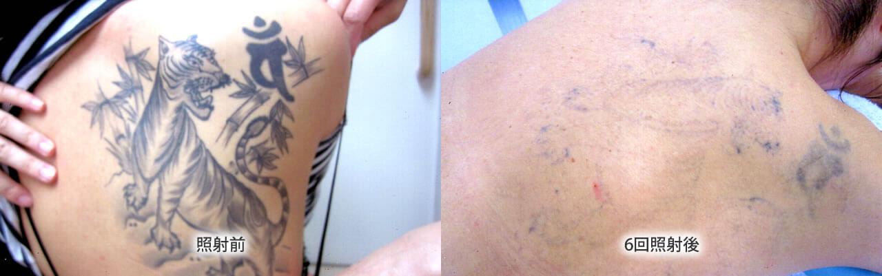 刺青・タトゥー除去 照射前・照射後