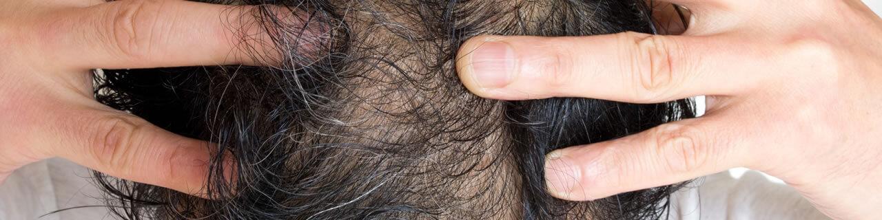 男性型脱毛症でお悩みの方へ