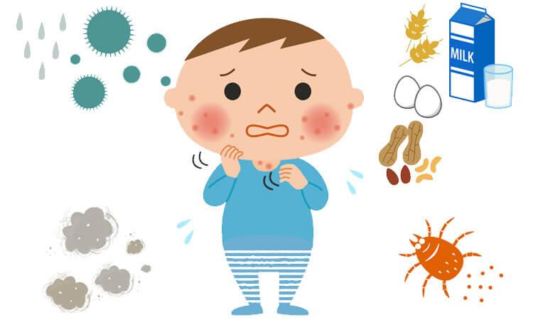 小児アトピー性皮膚炎の原因
