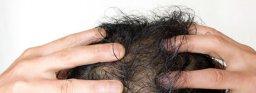男性脱毛症